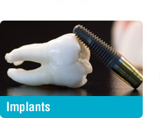 Dental Implants - Toronto Yonge Lawrence