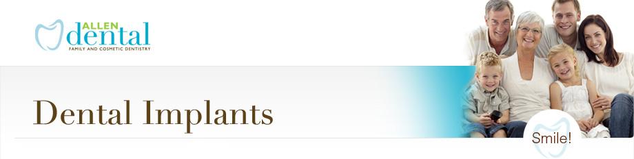 Dental Implants - Allen Dental Clinic Toronto